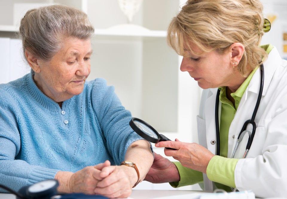 recognizing preventing melanoma seniors